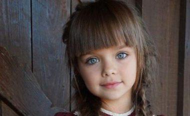 Ishte vajza e vogël më e bukur në botë para dy viteve por si duket sot (FOTO LAJM)