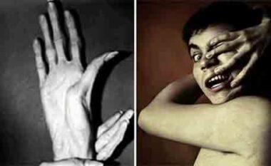Çfarë është sindroma e dorës së alienit?