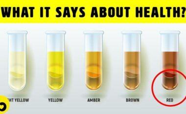 Kini kujdes! Ngjyra e urinës zbulon çfarë problemesh shëndetësore keni