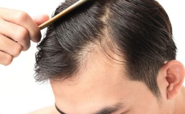 Njihuni me arsyet pse ju bien flokët