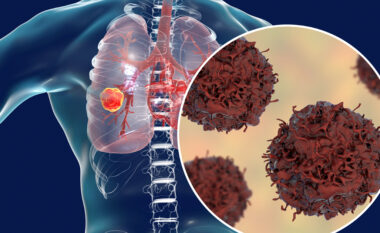 Kanceri i mushkërive