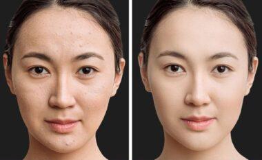 Më e lehtë sesa mendohej! Sekreti i japonezëve për një fytyrë pa pore dhe imperfeksione