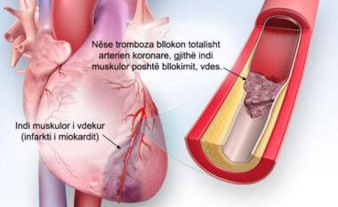 Nëse je mbi 30 vjeç, mëso si të parandalosh plakjen e zemrës dhe atakun
