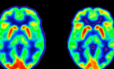 Lajm i mirë befasues se si menopauza ndryshon trurin tuaj