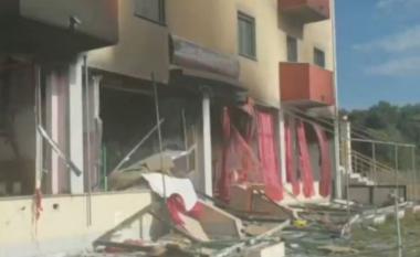 Mjekia jep detaje tronditëse nga shpërthimi në Velipojë: Janë djegur në 90% të trupit