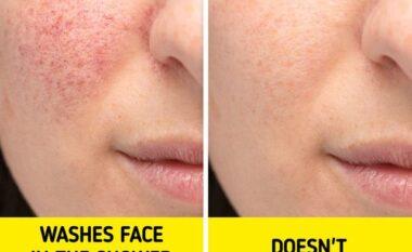 Nga aknet deri tek rrudhat, arsyet pse nuk duhet ta lani fytyrën kur bëni dush