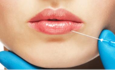 Në këtë qytet 30% e popullsisë ka buzët e fryra me injeksion