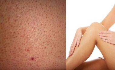 """Lëkura """"luleshtrydhe"""": Çfarë e shkakton dhe si ta trajtoni në shtëpi"""