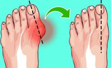 Shpëtoni nga kockat e dala të këmbëve me këto hapa (FOTO LAJM)