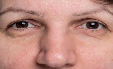 Rënia e vetullave, detaji pas të cilit mund të qëndrojë kjo sëmundje