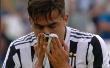 """Allegri me """"dhimbje koke"""", ndaj Chelsea mungojnë dy yjet e sulmit"""