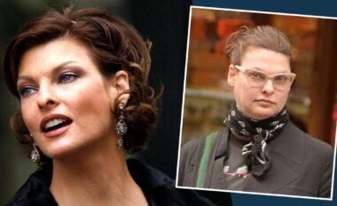 Supermodelja zbulon për herë të parë pse u largua nga ekrani: Mbeta e deformuar nga ndërhyrjet kozmetike (FOTO LAJM)