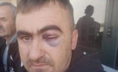 Shiste fruta-perime, dhunohet nga Policia e Lushnjes një qytetar nga Elbasani (VIDEO)