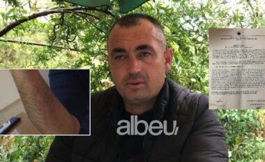Terrorizuan familjen me shkop bejzbolli dhe më pas i kërcënuan, procedohen penalisht dy autorët në Kuçovë